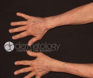 fraxel hands after