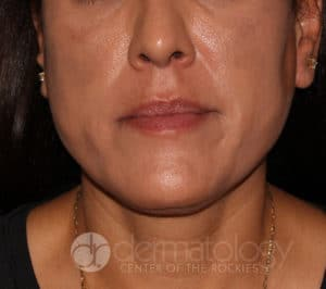 melasma after treatment