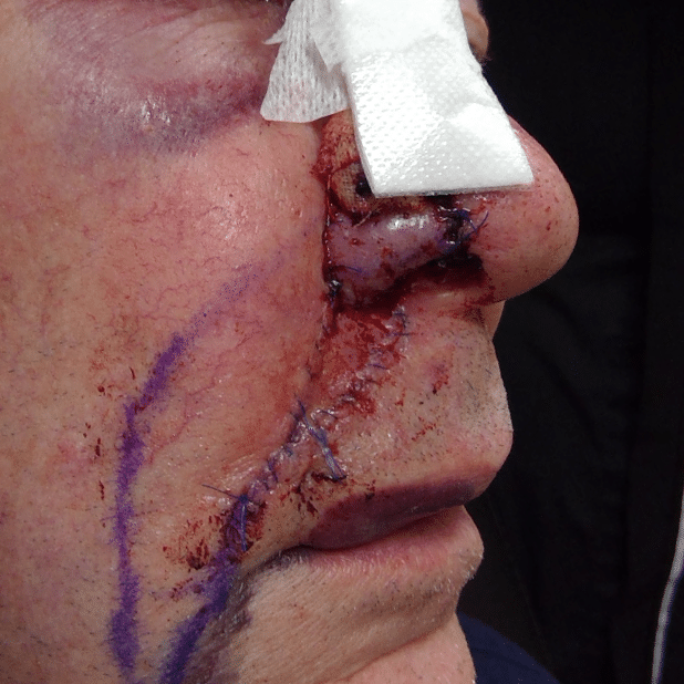 mohs skin cancer surgery jc4