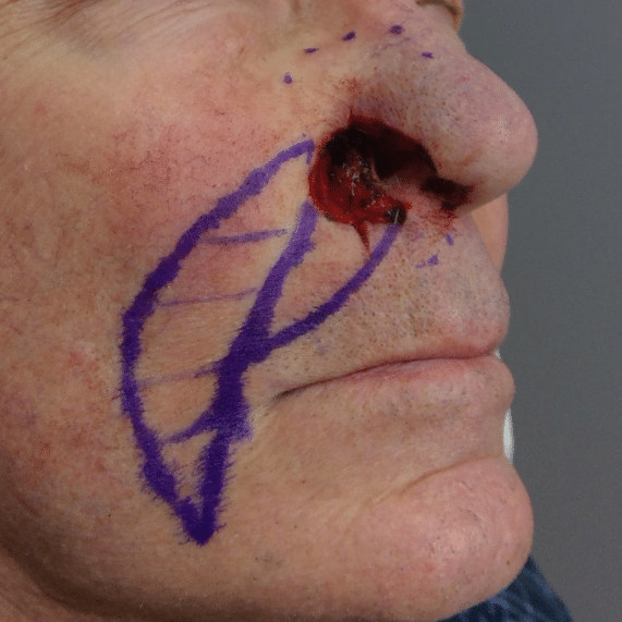 mohs skin cancer surgery jc5
