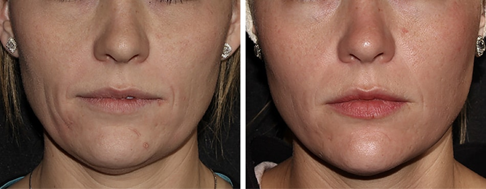 face procedures featured case front