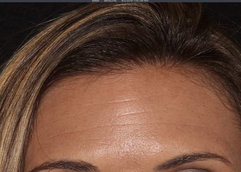 forehead botox results sd