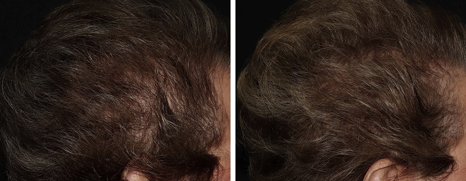 hair loss treatment featured case front