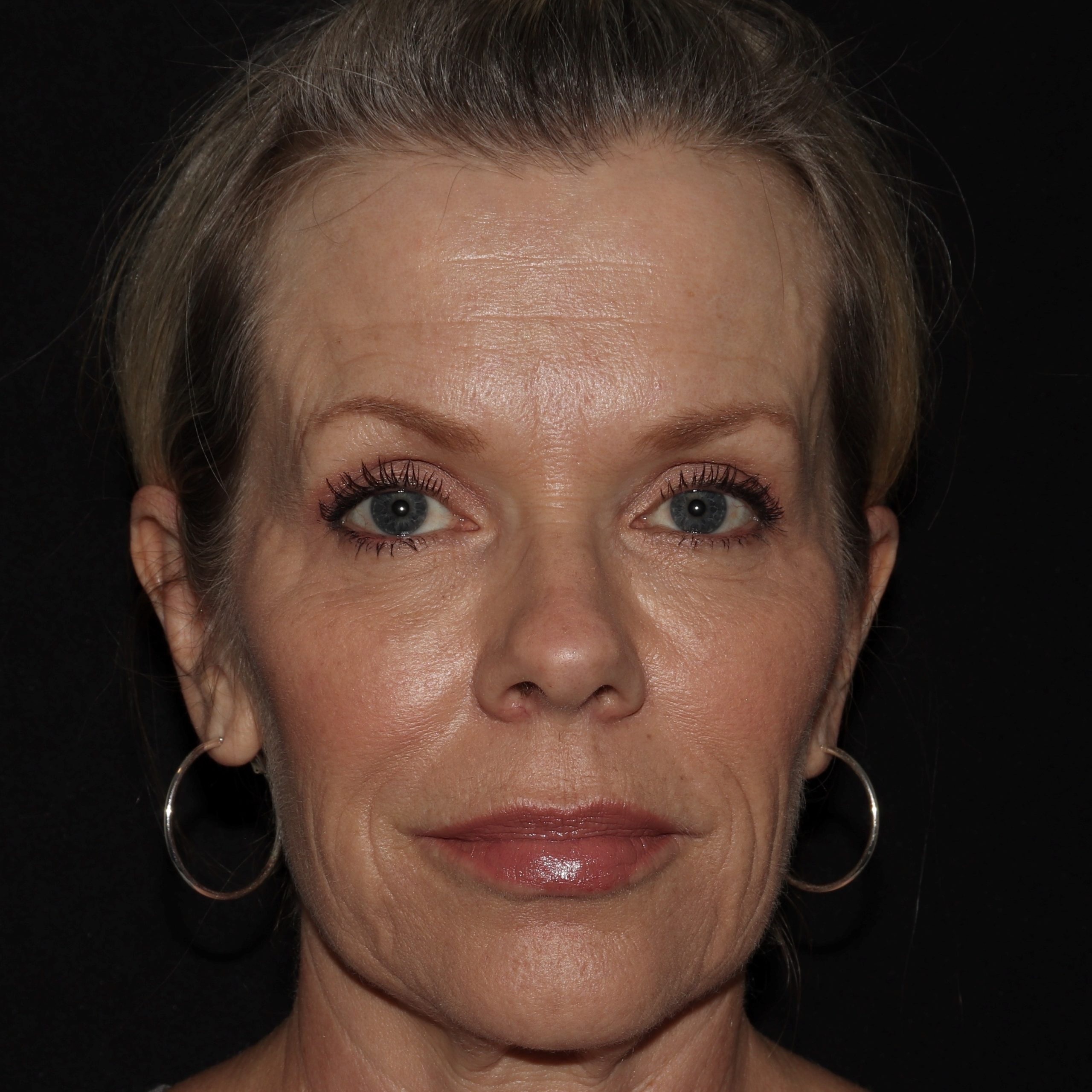lw botox and filler results