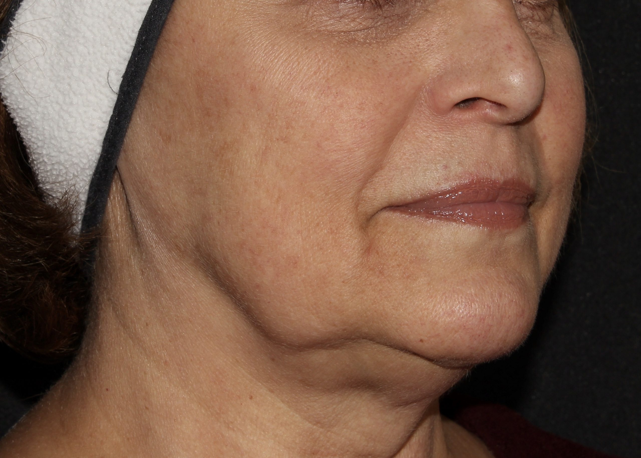 medical spa facial ms scaled 1