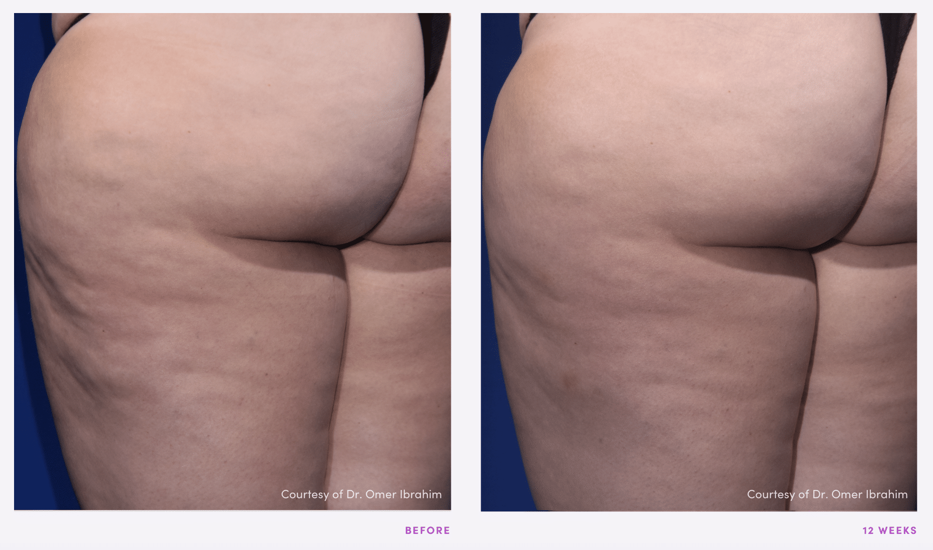Resonic Cellulite Reduction Before and After pictures