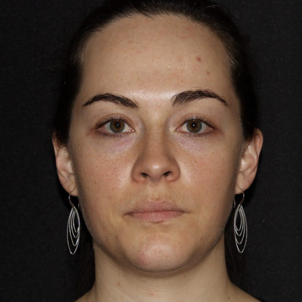 Before botox juvederm scaled 1