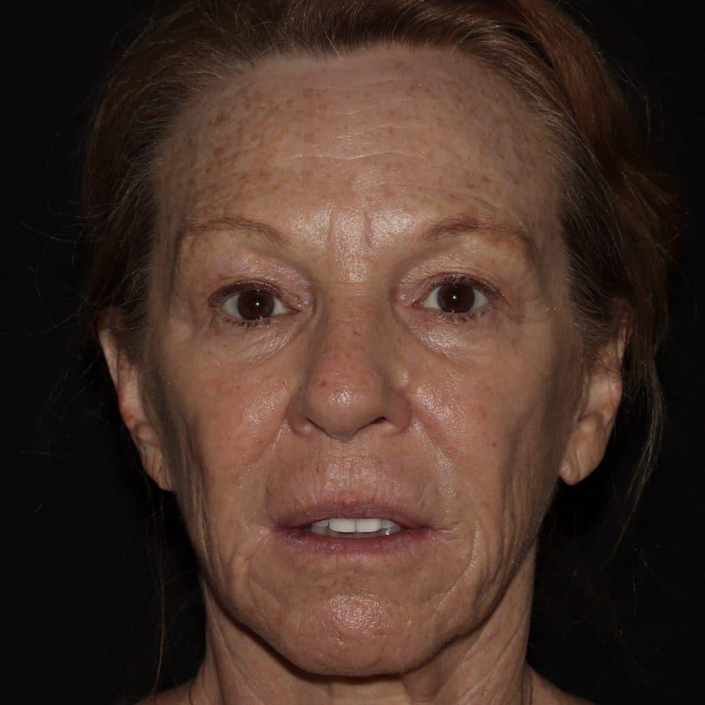 Botox Restylane CR scaled 2