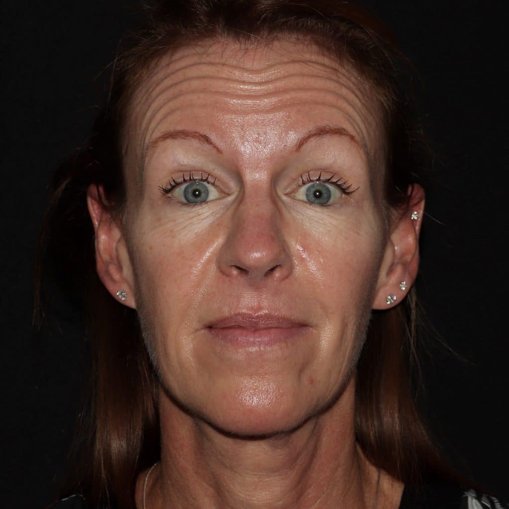 Botox Results 1AB scaled 1