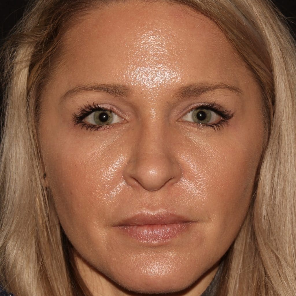 Botox injections mm