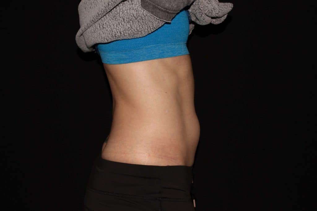 CGX Coolsculpting scaled 1