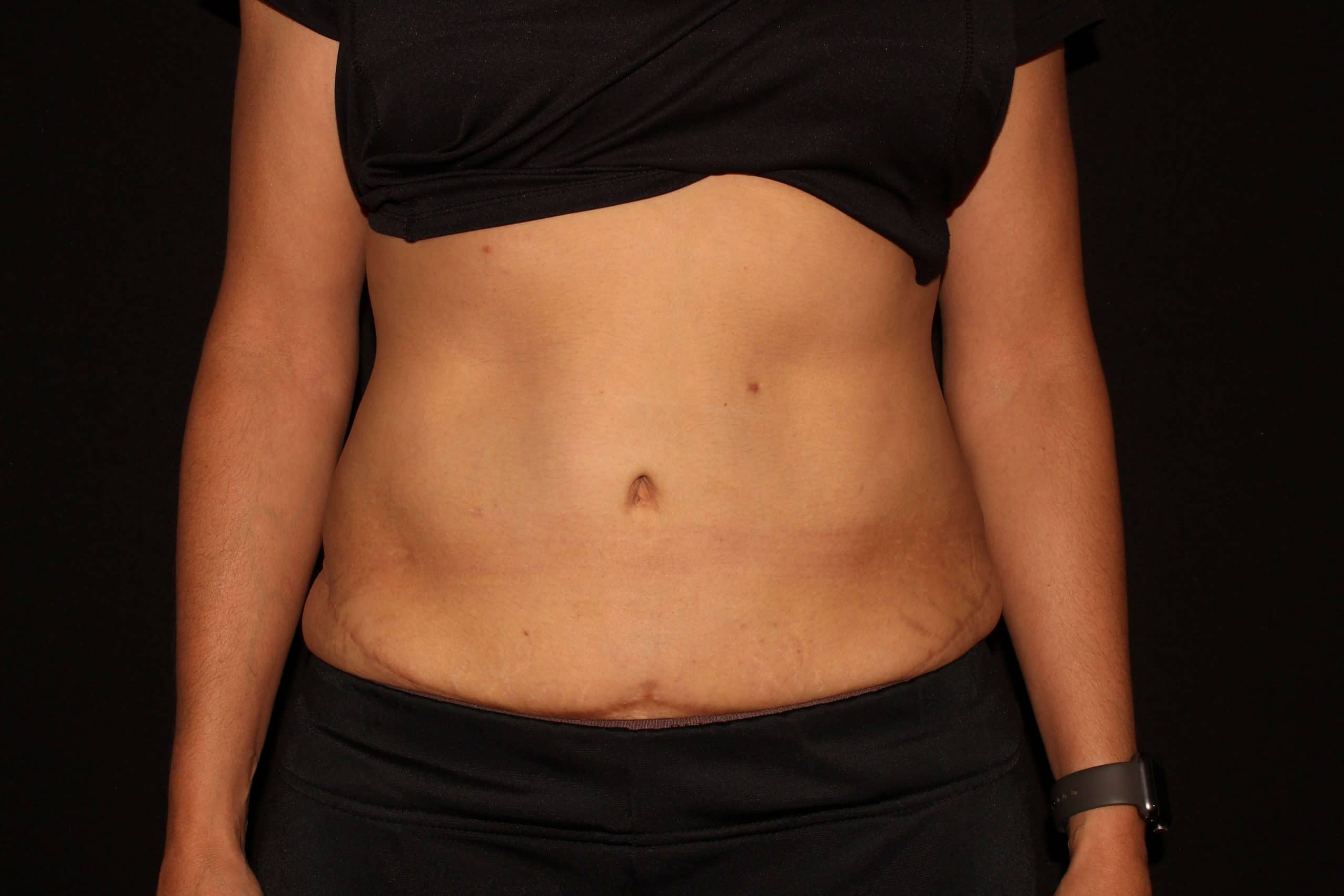 Coolsculpting MM scaled 1