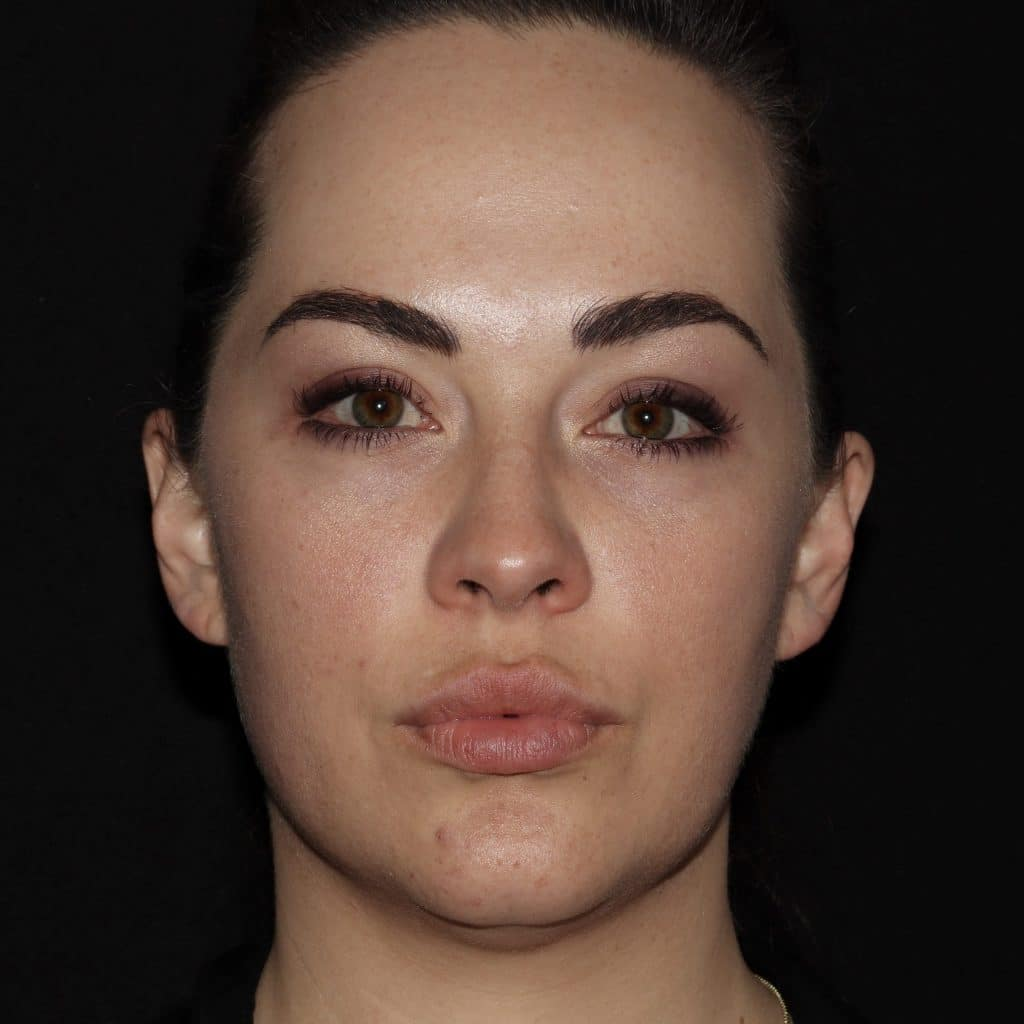 JQ Facial Fillers and Botox scaled 1