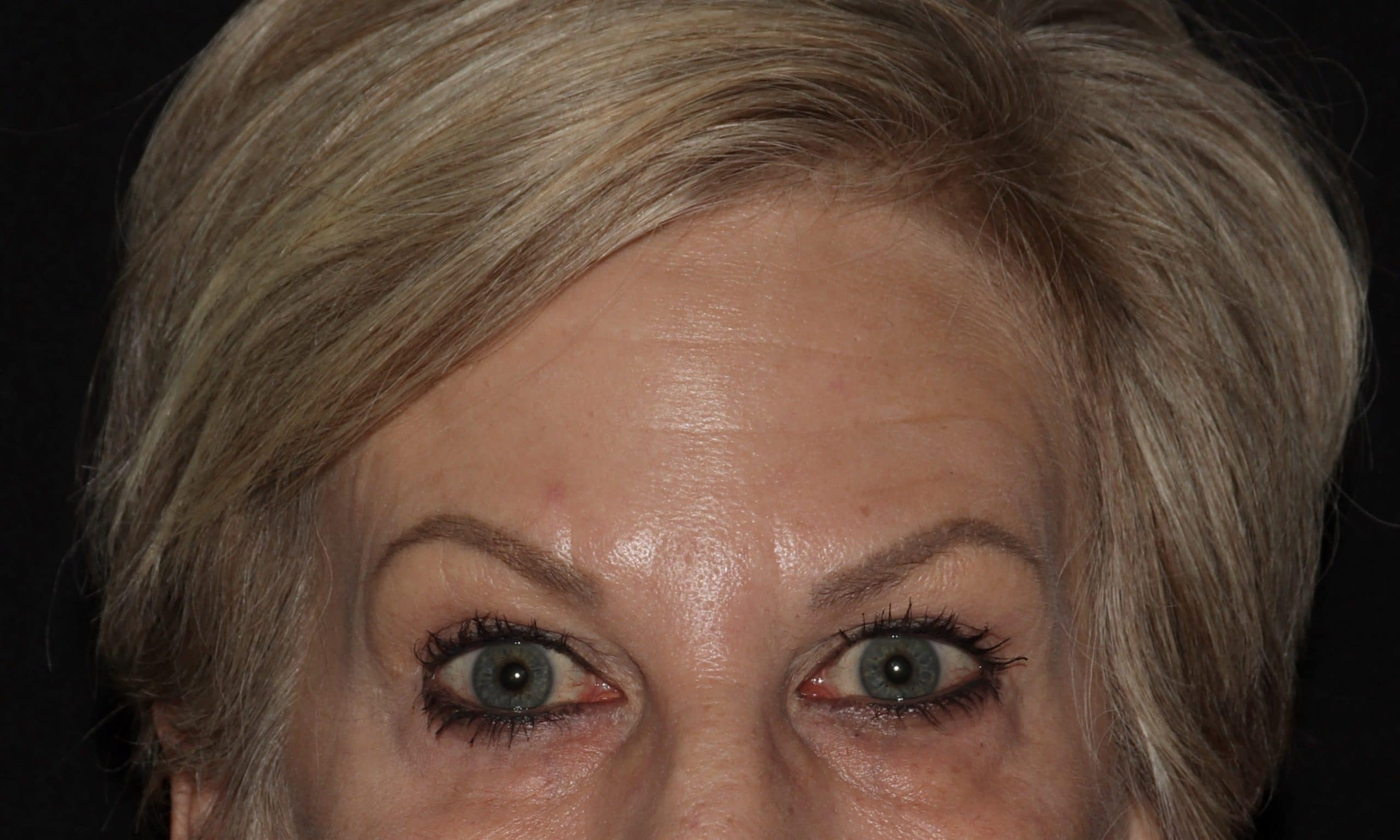 Juvederm results CH scaled 1