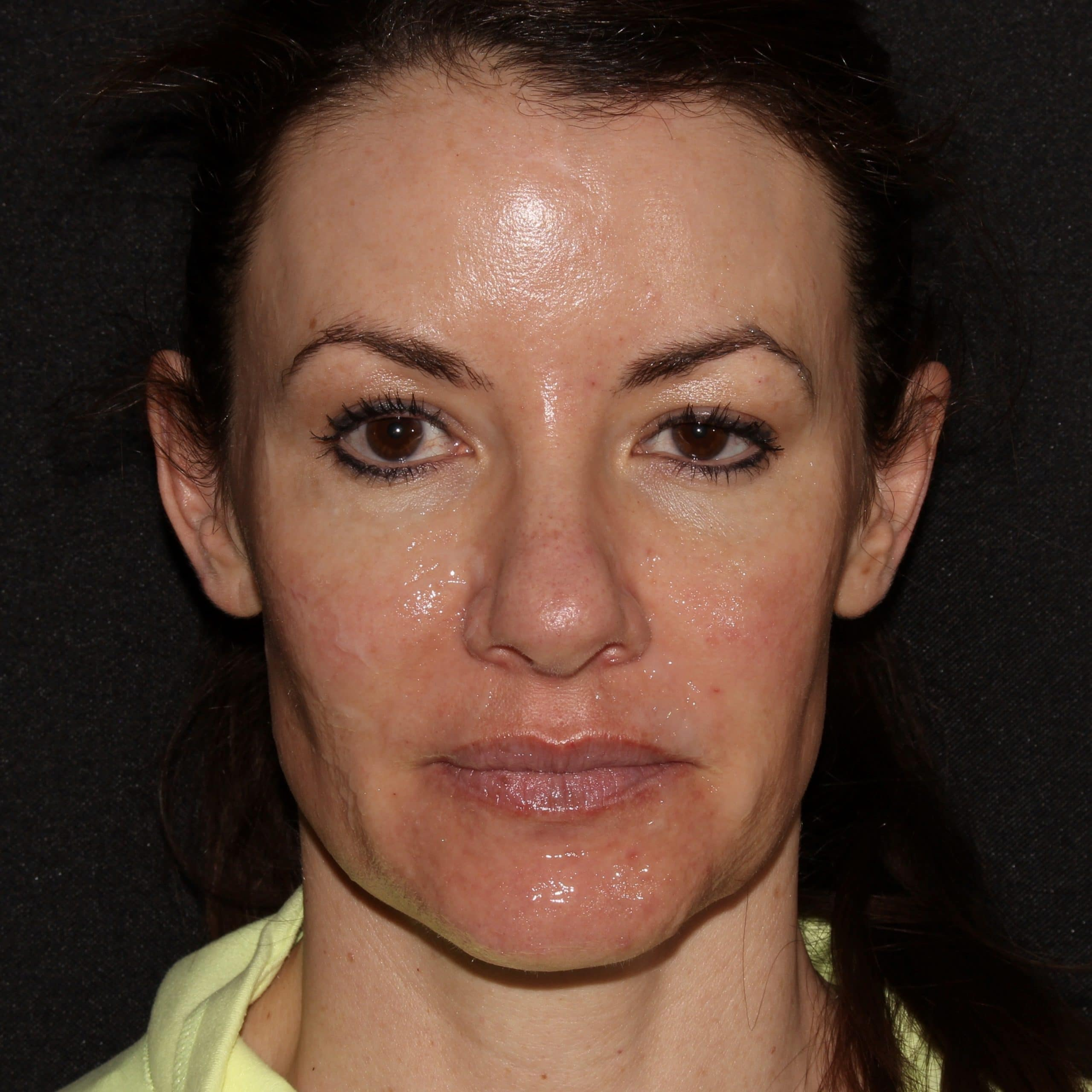 KC Botox and sculptra scaled 1