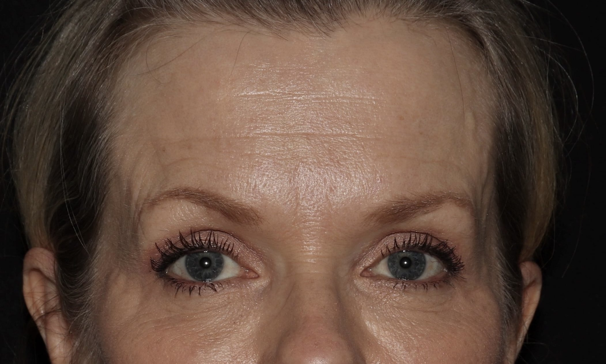 LW Botox and filler results scaled 2