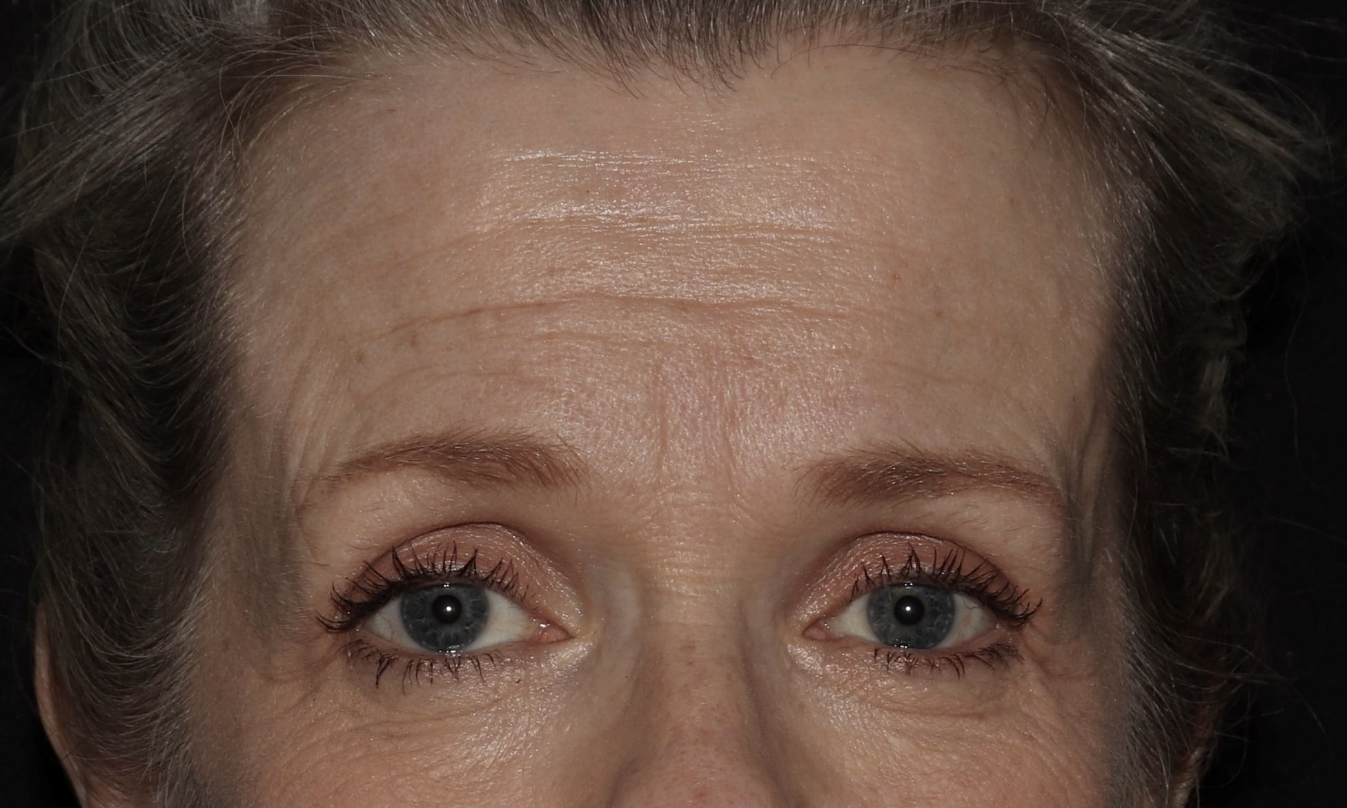 LW Fillers Botox Longmont scaled 2