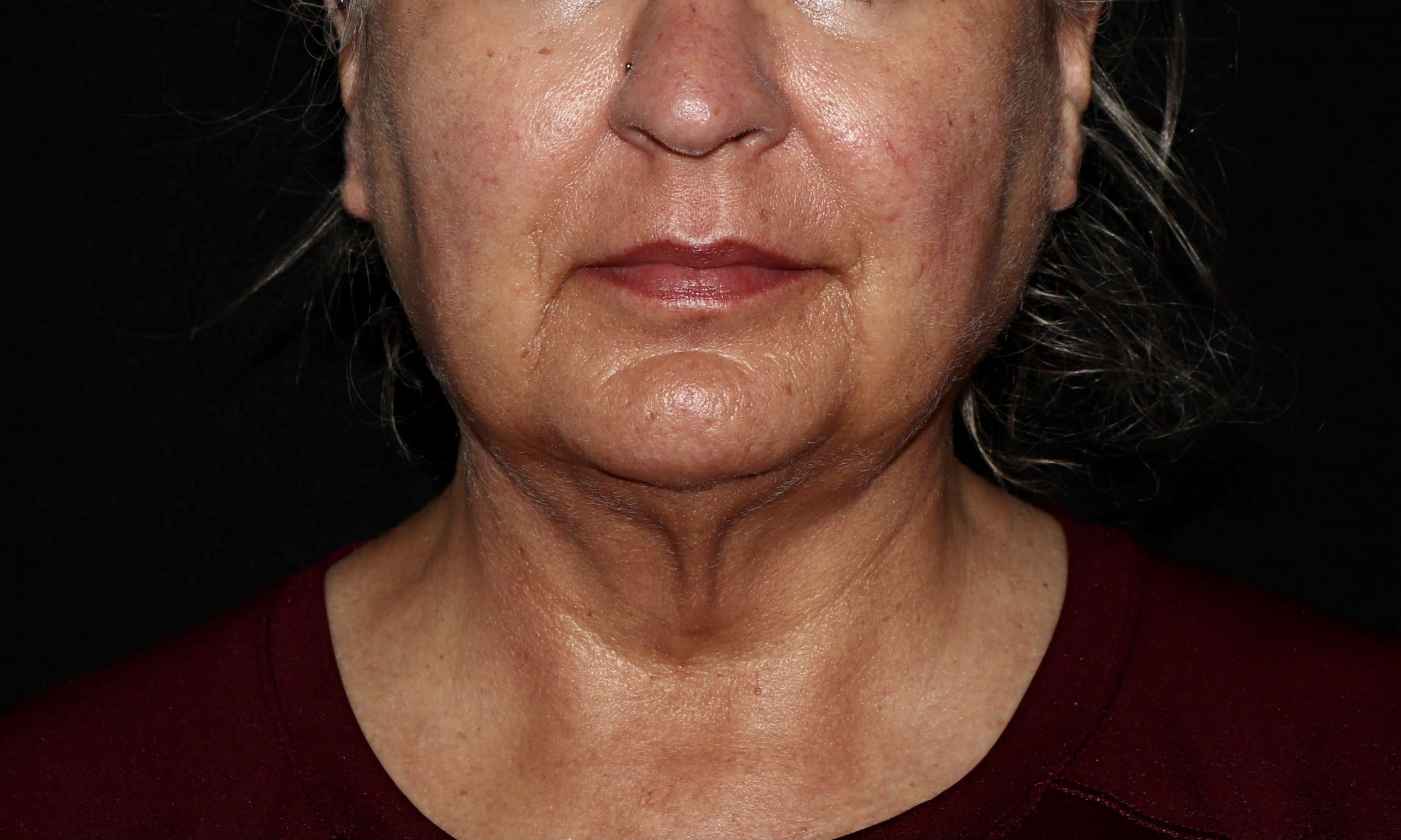 Coolsculpting Neck Treatment Results