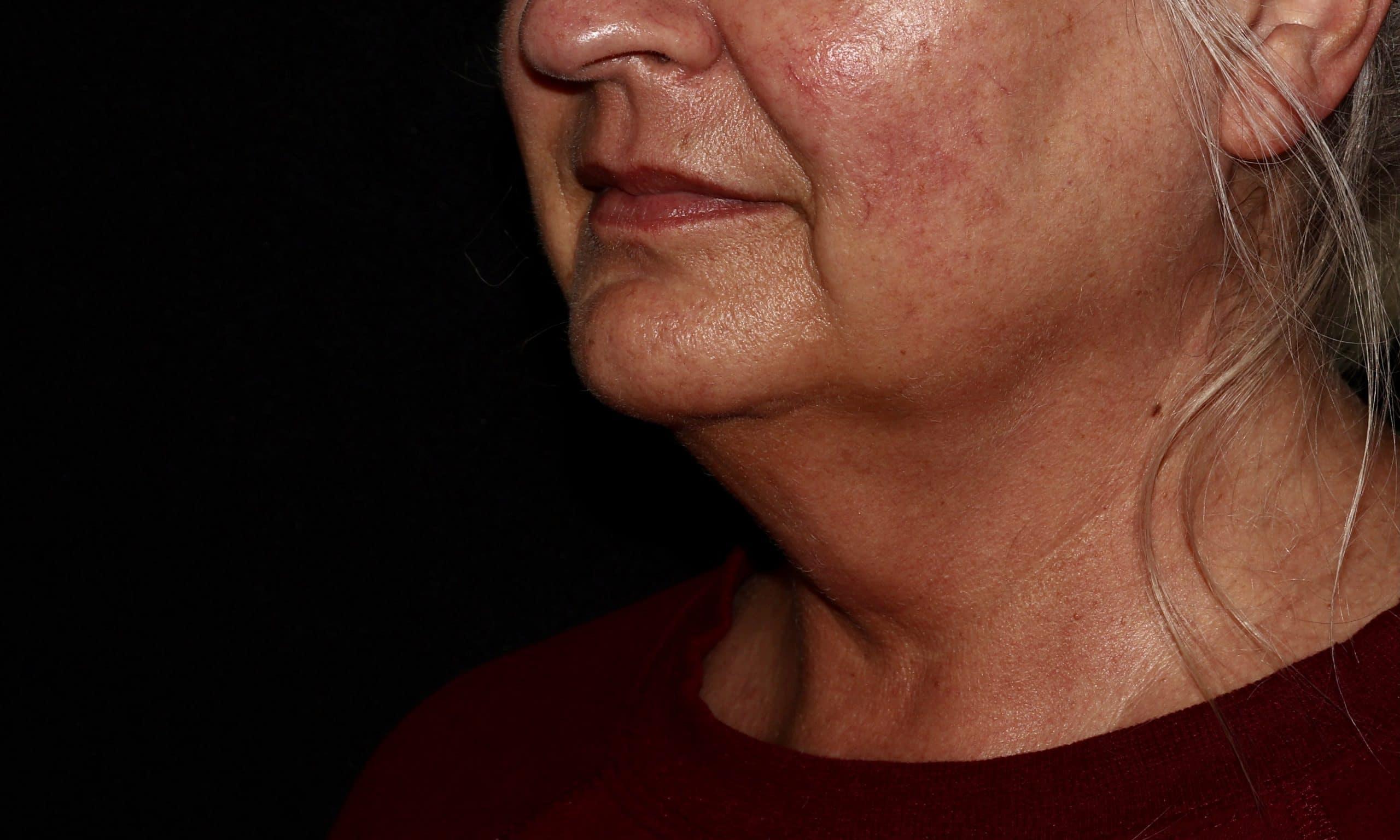 Coolsculpting Neck Treatment Before