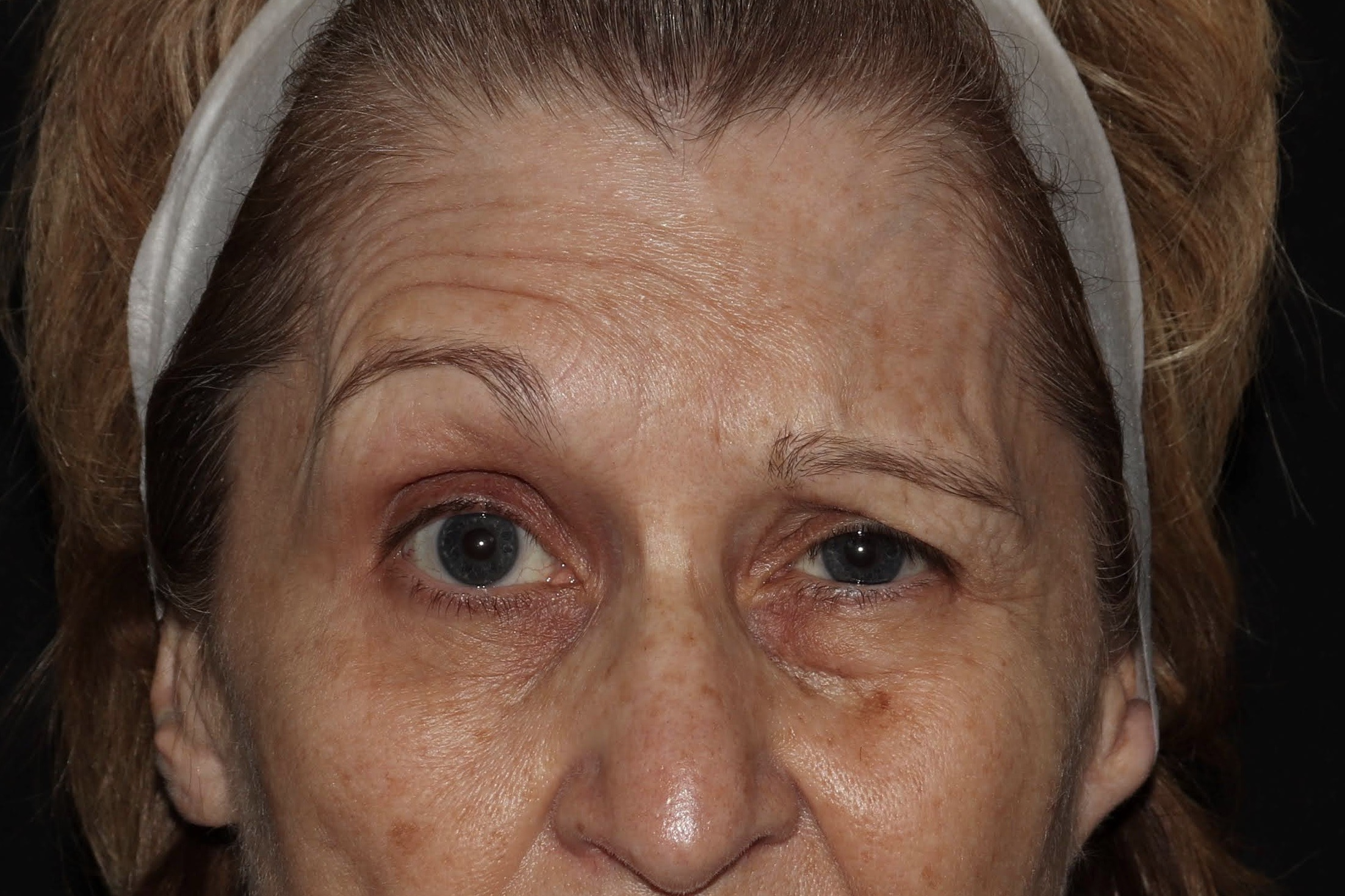 MS Botox Brow Lift after