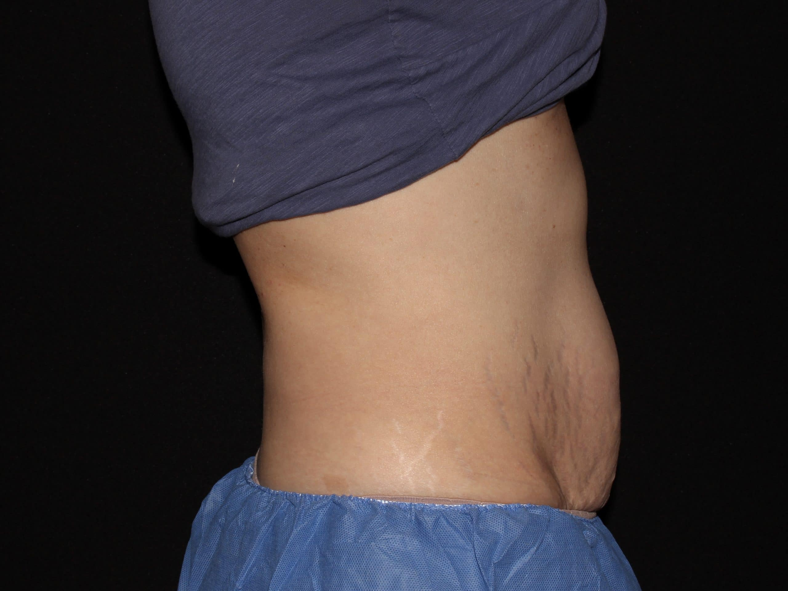 SM 1 Side View Coolsculpting scaled 1