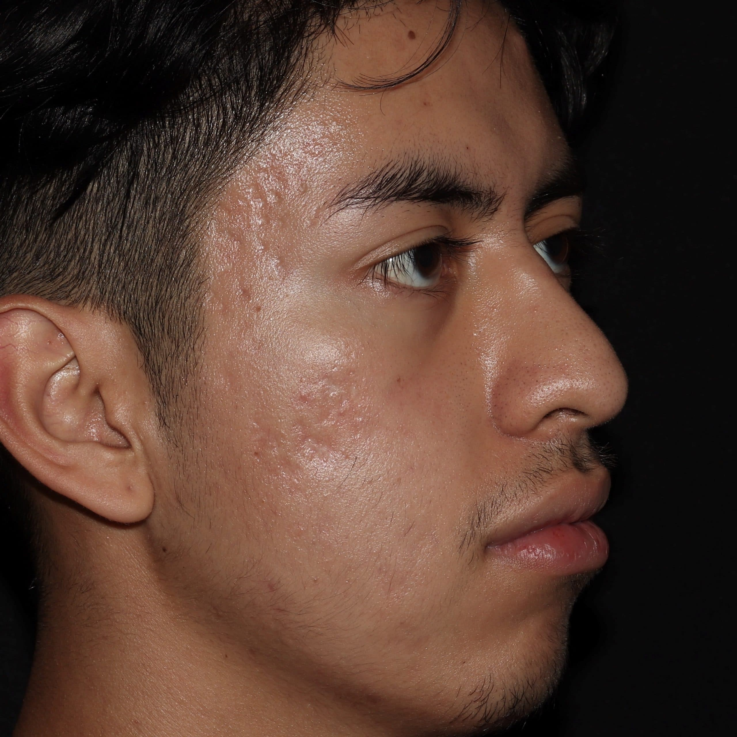 acne treatment bl4 scaled 1