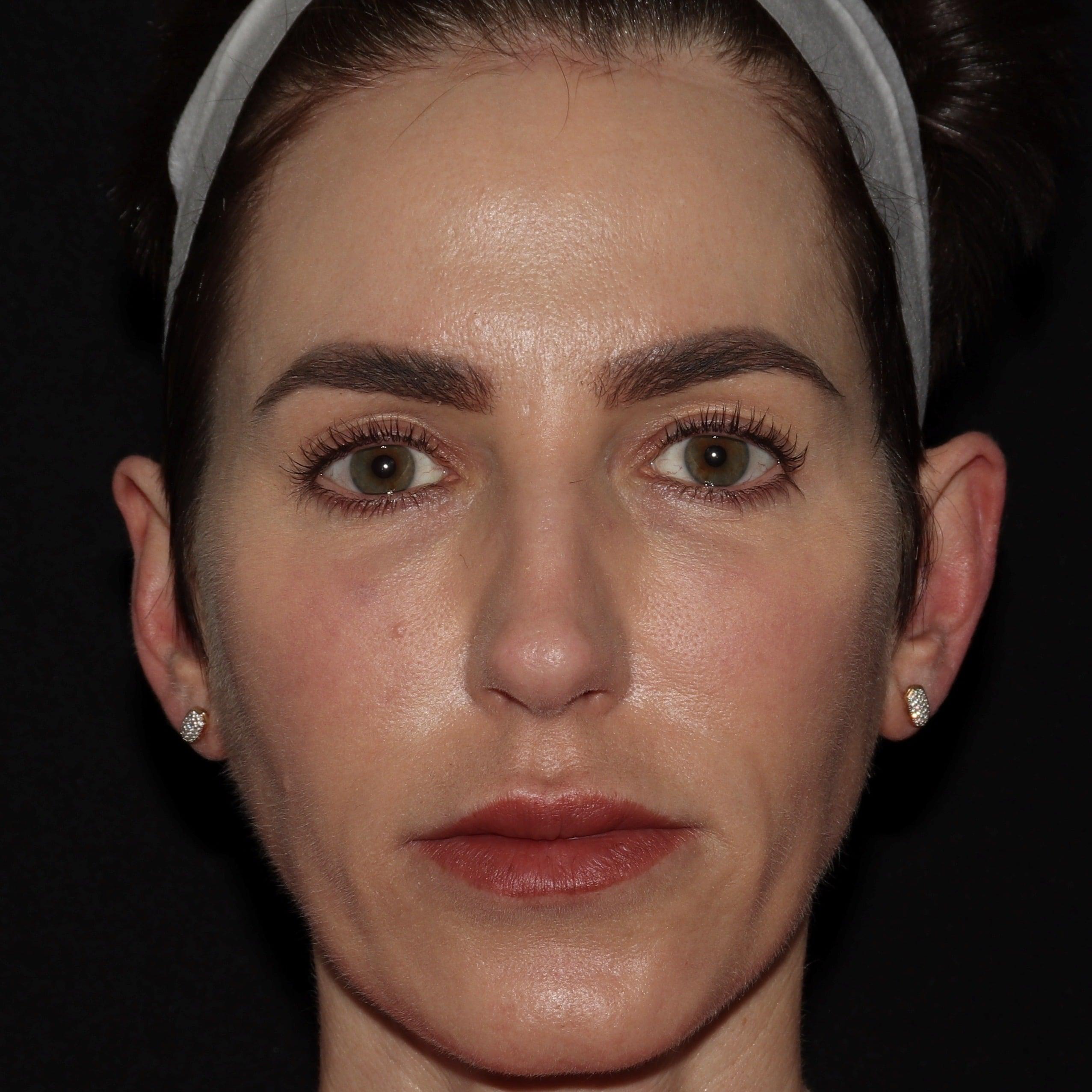 botox and filler sl1