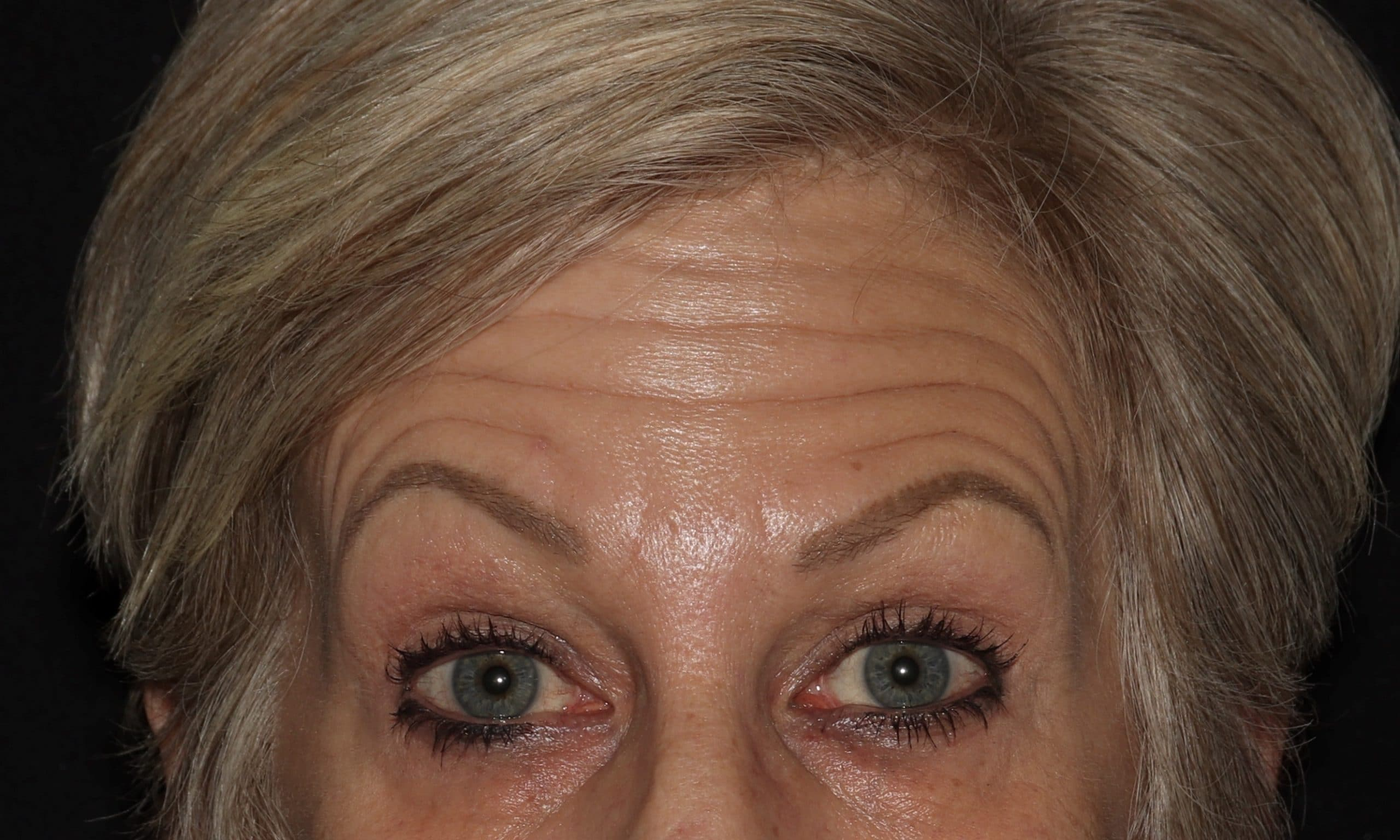 botox results CH scaled 1