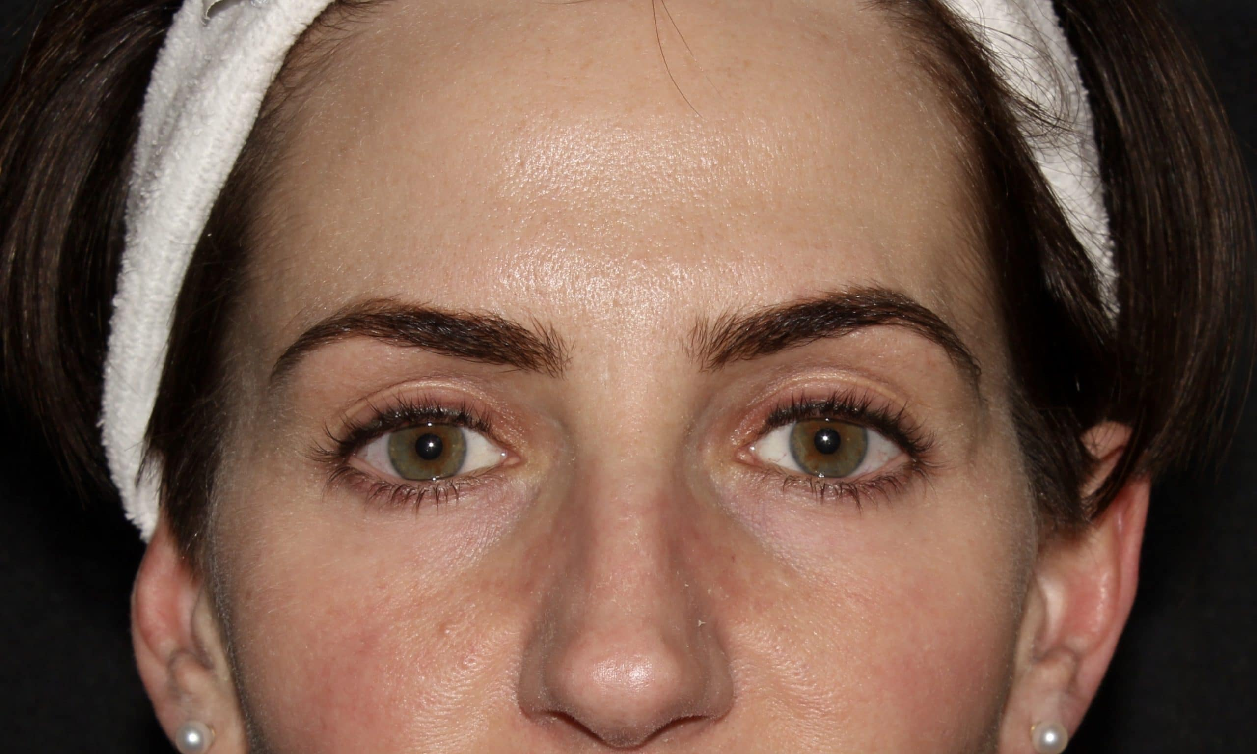 botox results sl scaled 1