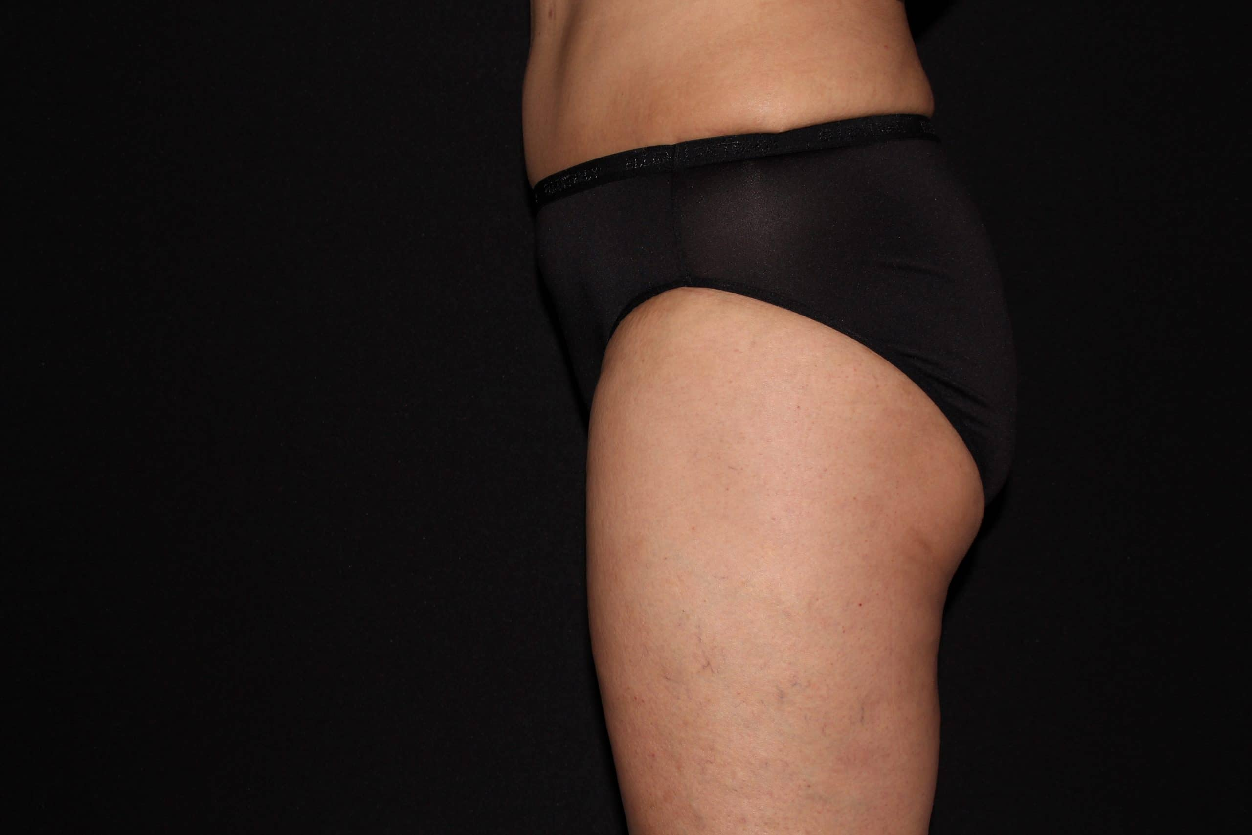butt coolsculpting mm scaled 1