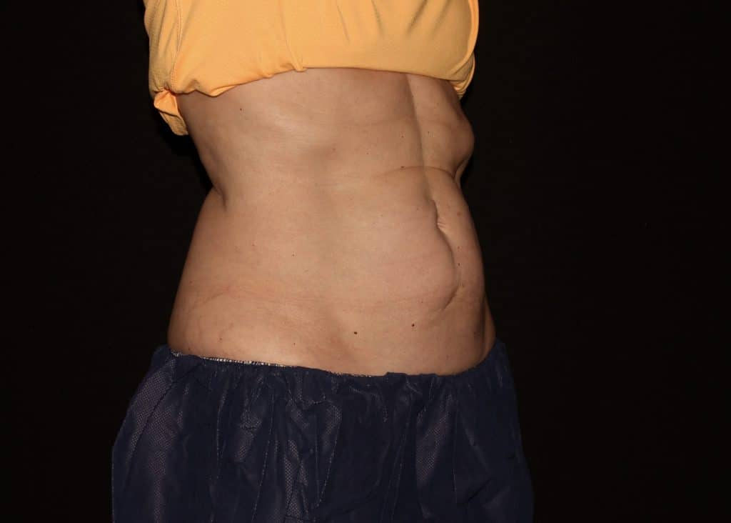 cool sculpting tummy LF1 scaled 1