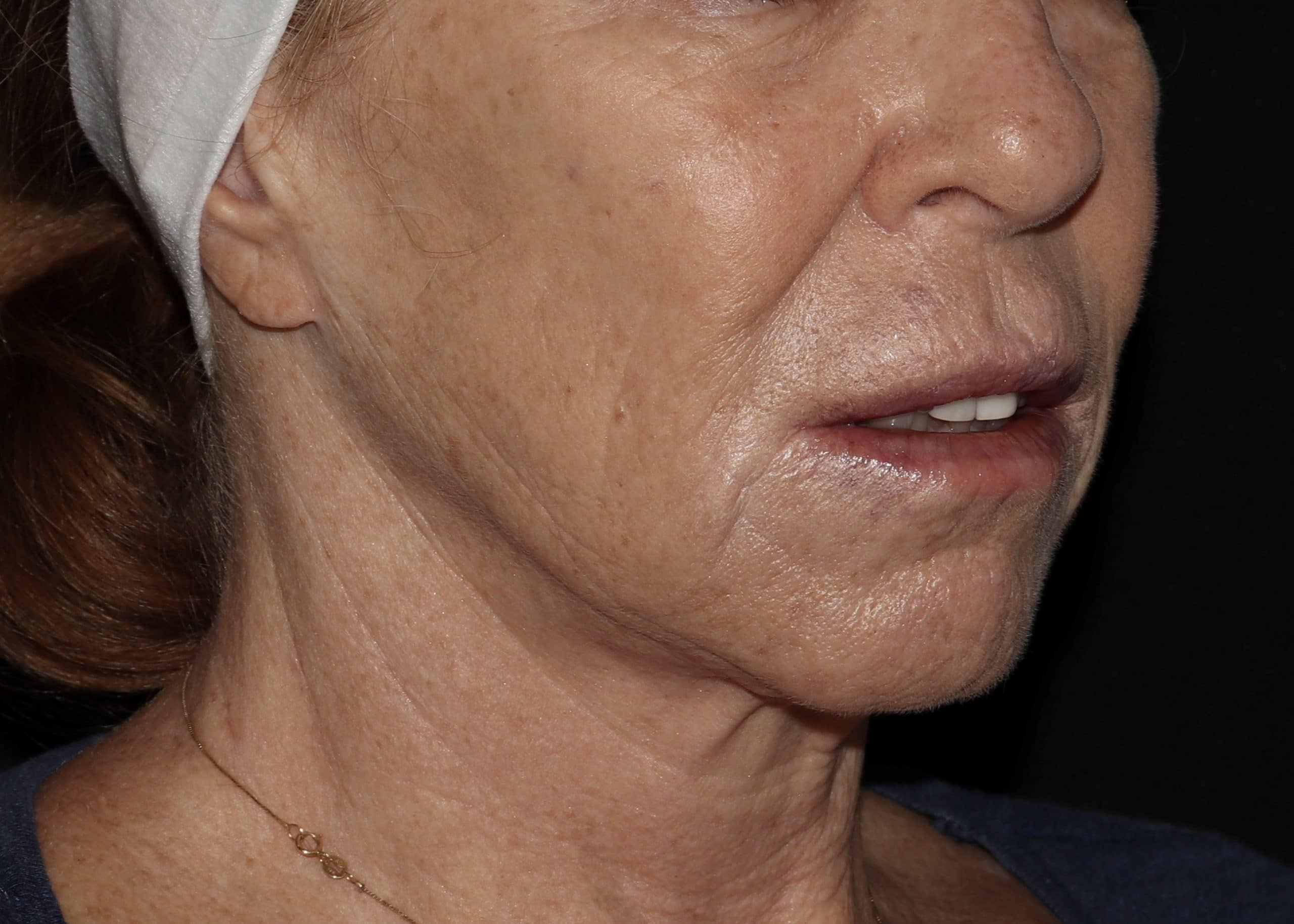 fillers and botox results cr1 scaled 1