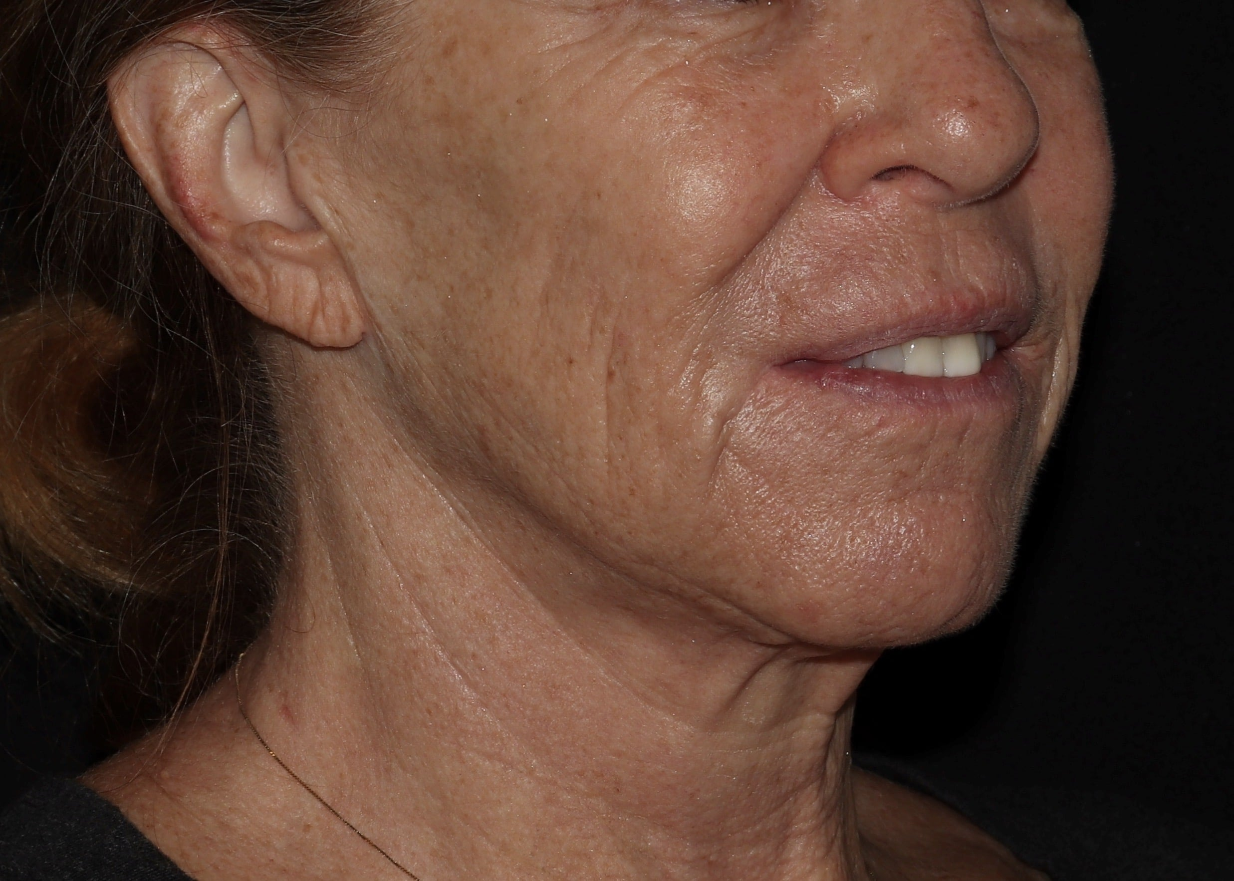fillers and botox results cr2
