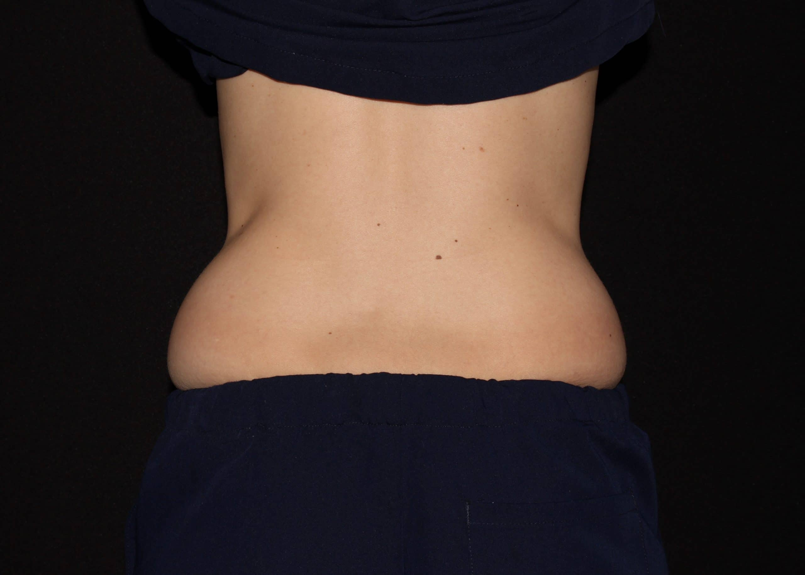 jh1 Coolsculpting scaled 1