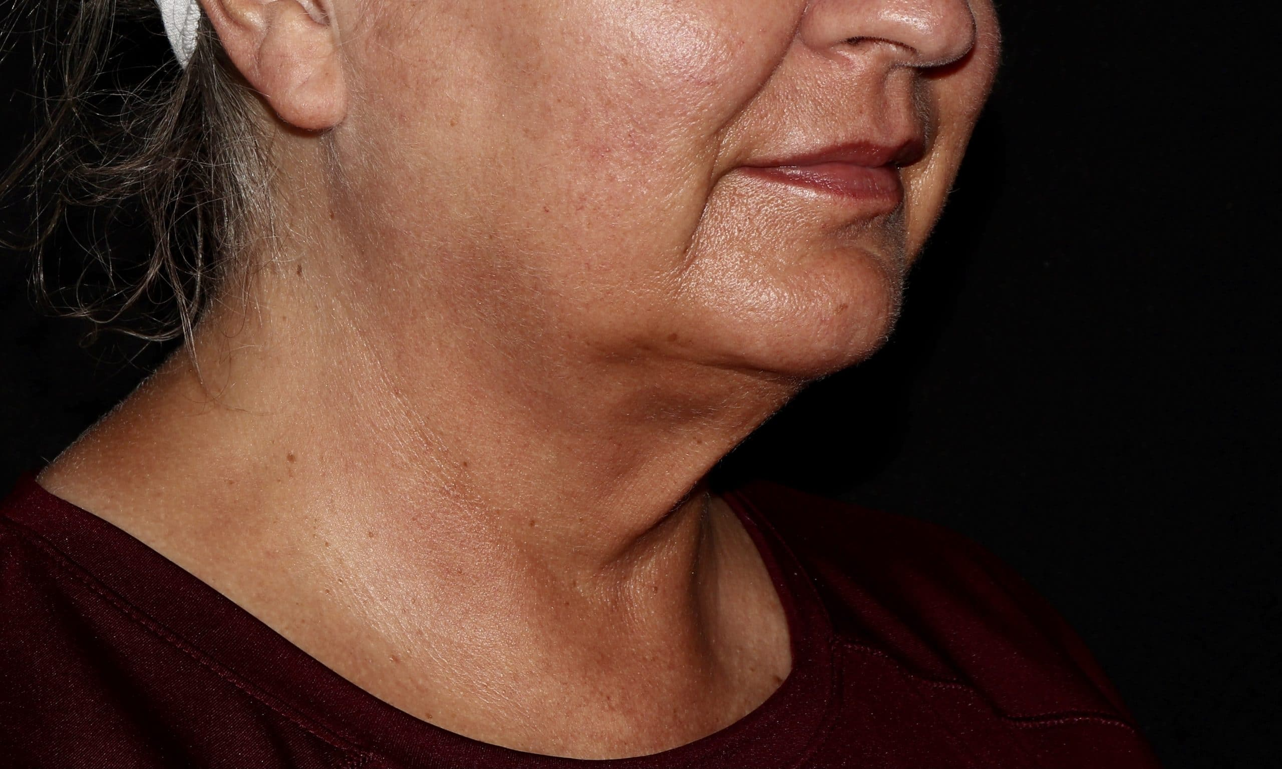 Coolsculpting Neck Treatment after results